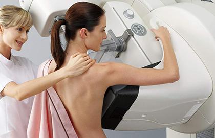 Rastreamento do câncer de mama - por Dra. Fabíola Kestelman