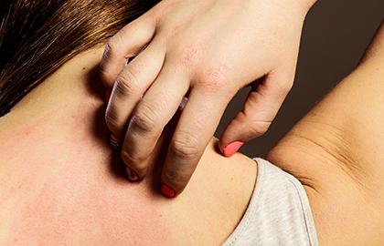 O estresse pode afetar a saúde da pele? - por: Dra. Cinthya Basaglia